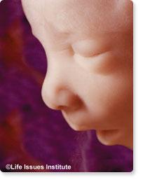 ea7ad4cb2 Mamá  Si éste es tu primer bebé